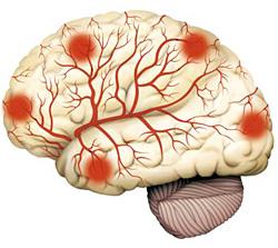 МРТ диагностика головного мозга и его сосудов